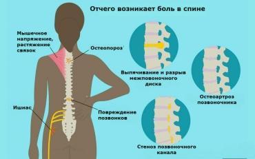 Причины и лечение болей в спине