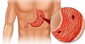 Ранние симптомы язвы желудка: их часто «глушат» лекарствами