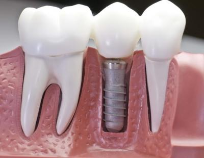 Что такое имплантация зубов All-on-4