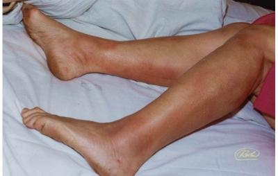Что такое узловатая эритема нижних конечностей симптомы и лечение у детей и взрослых