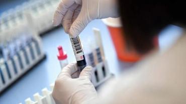 В Курской области коронавирус подтвердился у 94 человек