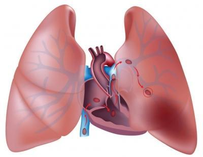 Что такое тромбоэмболия симптомы и лечение ТЭЛА