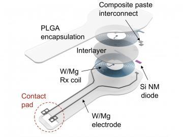 Изобретен первый временный кардиостимулятор, растворяющийся в организме через неделю