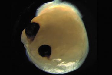Выращенный в лаборатории небольшой мозг смог развить рудиментарные глаза