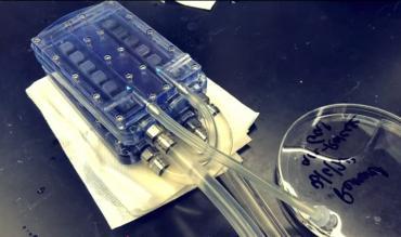 Создан прототип первой биоискусственной почки для трансплантации вместо диализа